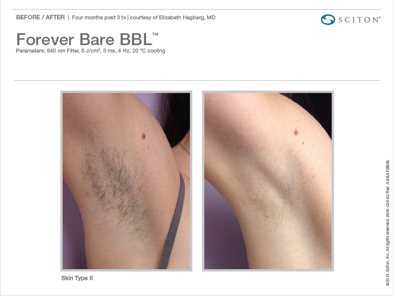 before and after hair removal