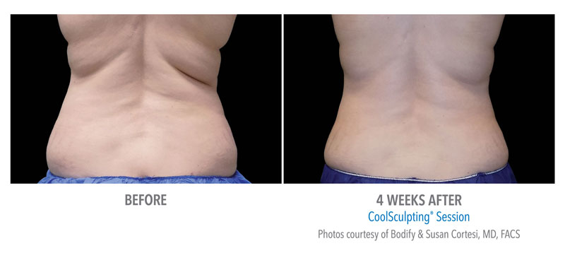 CoolSculpting Before and After Back