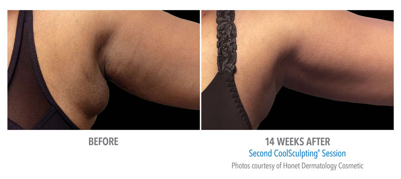 CoolSculpting Before and After Bra Fat
