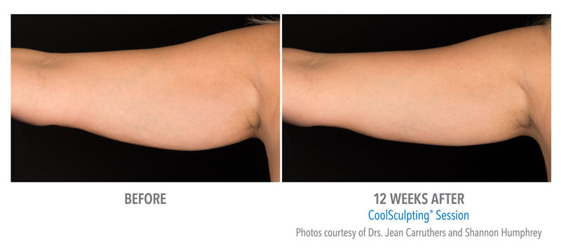 CoolSculpting Before and After arm