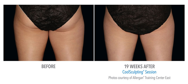 CoolSculpting Before and After Thigh